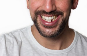 How Do We Treat Missing Teeth?
