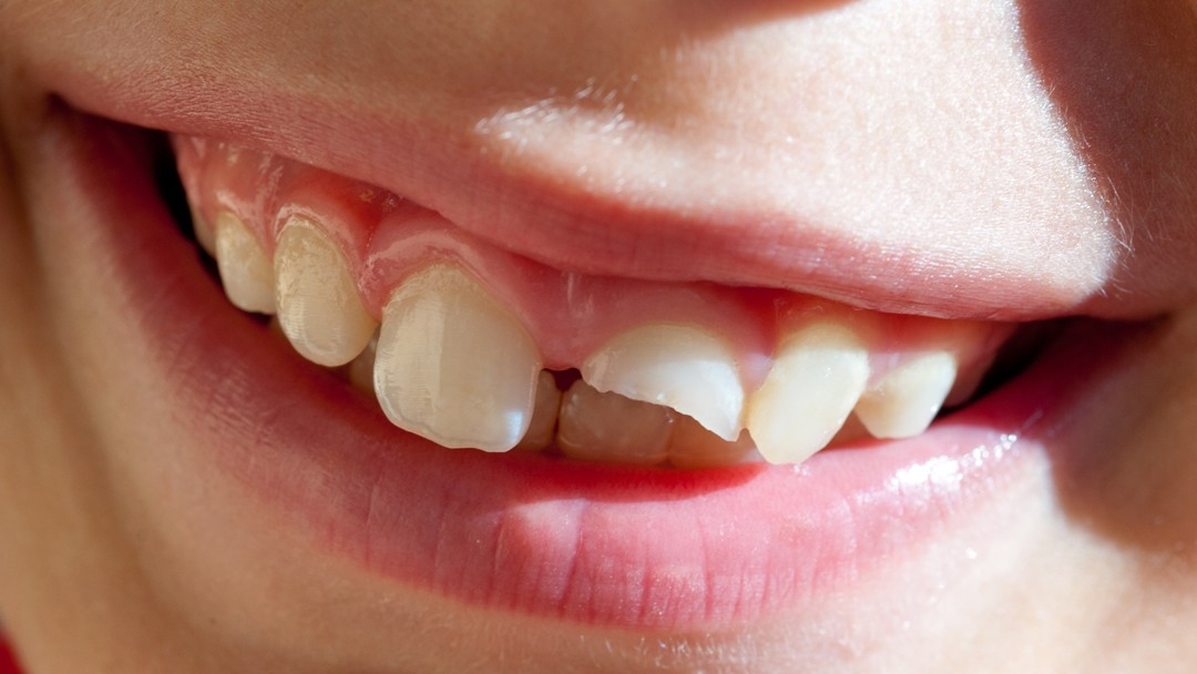 Chipped Tooth? Find Out How a Dentist Can Help You
