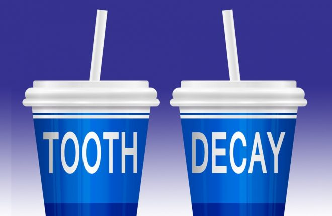 The Impact of Sugary Drinks on Your Teeth