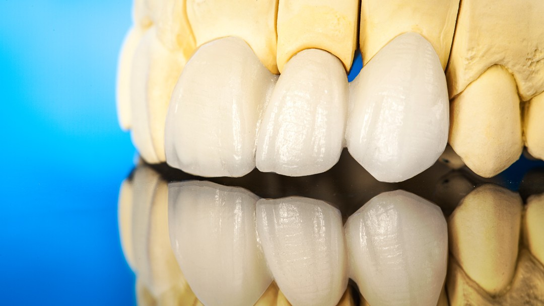 All About Veneers and How to Care for Them