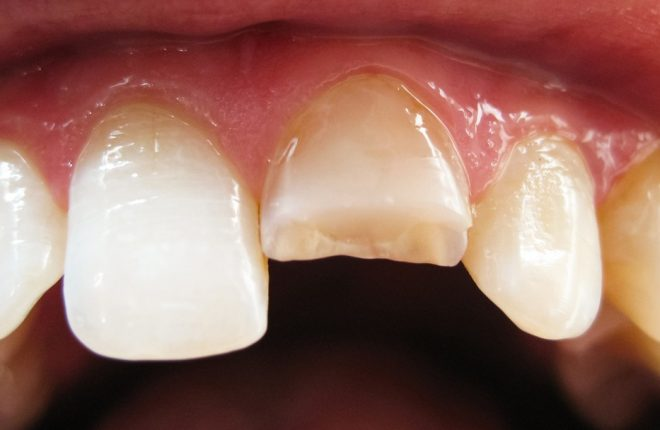 What to Do When You Chip or Break a Tooth