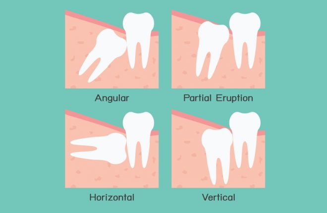 Know the Warning Signs of Impacted Wisdom Teeth