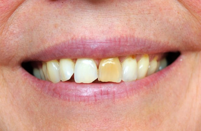 Does Discoloured Teeth Mean They're Unhealthy?