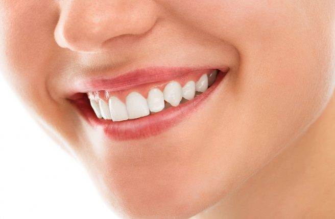 Teeth Whitening/Zoom Teeth Whitening