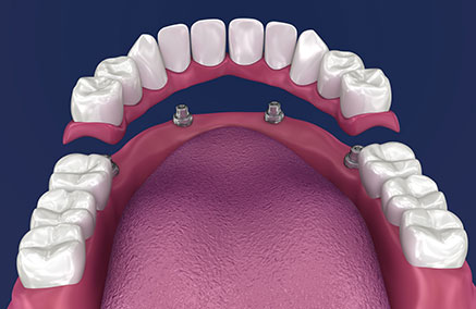 Frequently Asked Questions About Dentures