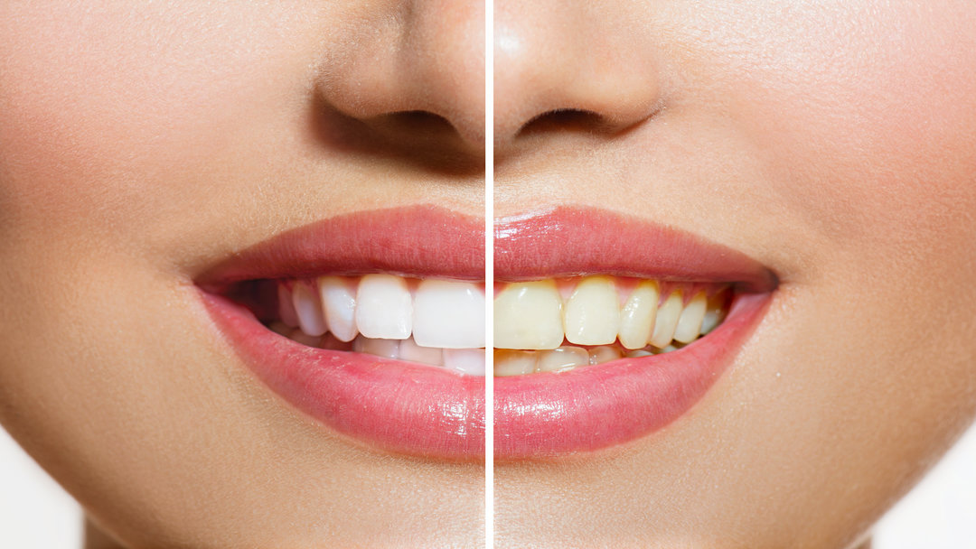What You Need to Know About Home Teeth Whitening