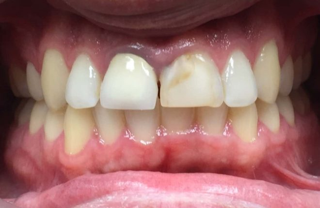 5 Advantages of Same-Day Crowns