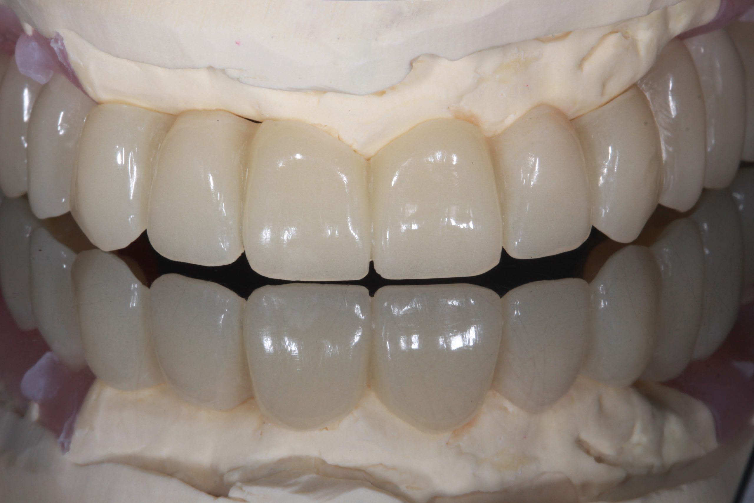 Can I Replace All My Teeth with Full Arch Implants?