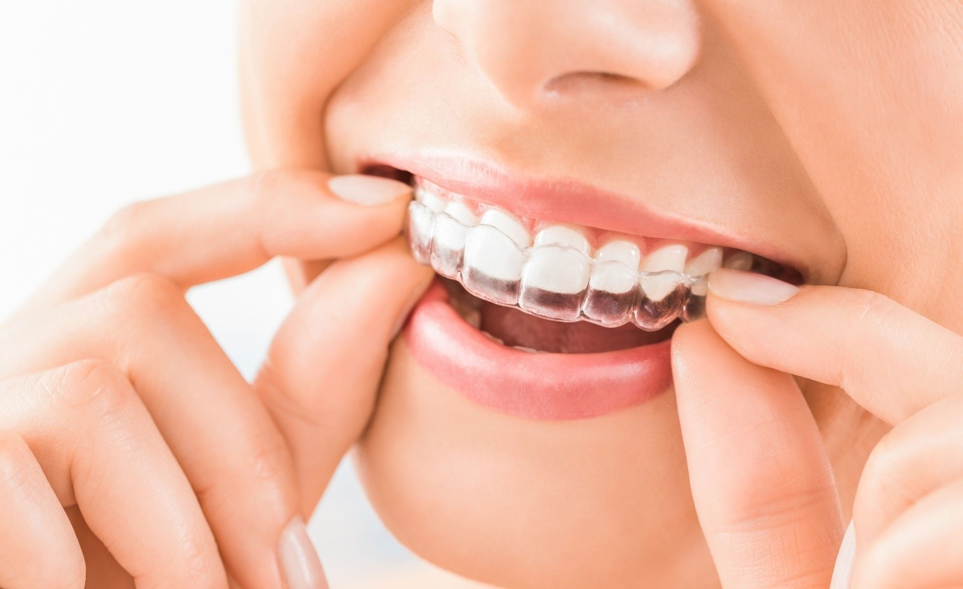 What to Expect With Invisalign Treatment